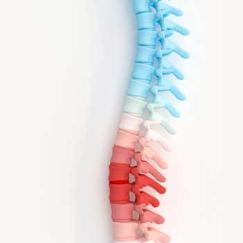 کمر درد و اسپوندیلولیستزیس لومبوساکرال