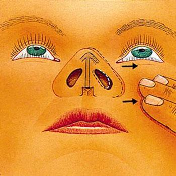 علل و درمان گرفتگی بینی