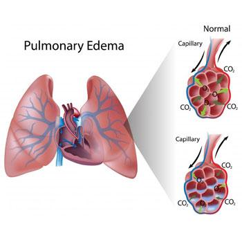 سندرم بیماریهای حاد تنفسی (ARDS)