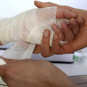 مراقبتهای پرستاری از بیماران سوختگی