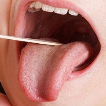 ضایعات شایع در حفرههای دهان